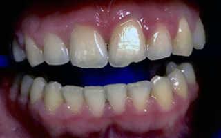 Дисколорит (изменение цвета зубов): причины, лечение, профилактика