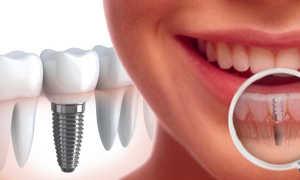 Отзывы про корейские импланты для зубов: виды, особенности установки, цены