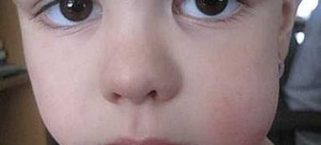 У ребенка опухла щека с одной стороны (внутри), зуб не болит: причины, что делать