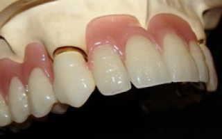 Пластмассовые зубные протезы: плюсы и минусы пластиковых зубов, отзывы, цена