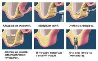 Протезирование зубов в случае отсутствия большого количества зубов
