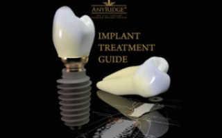 Обзор корейских имплантатов AnyRidge (Эниридж), цена
