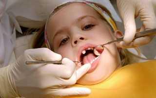 Хронический и острый периодонтит молочных зубов у детей: симптомы, лечение