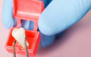 Боль в десне при прорезывании зуба мудрости: присины, лечение и возможные осложнения