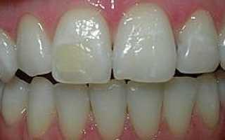 Можно ли отбеливать зубы с пломбами; как отбелить на переднем зубе, если пожелтела пломба