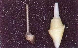 Что такое зубная вкладка (культевая и восстановительная): как ставится на зуб