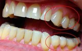Избирательное пришлифовывание зубов по Дженкельсону: что это такое, методика