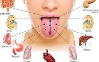 Белый налет на языке: причины и лечение народными средствами