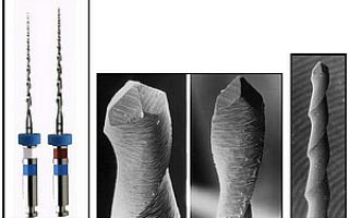 Mtwo файлы (стоматология – эндодонтия): никель-титановые инструменты, методика работы
