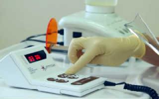 Применение в стоматологии аппарата лазерной терапии Оптодан