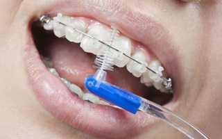 Как чистить зубы с брекетами: средства ухода (зубные щетки, ершики), как носить