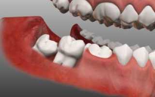 Ретинированный и дистопированный зубы: что это, и каково решение проблемы?