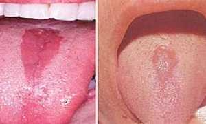 Ромбовидный глоссит языка: лечение, фото, осложнения, уход