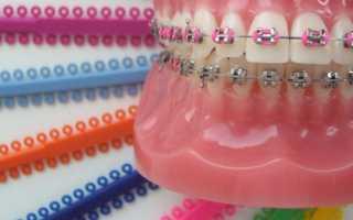 Разноцветные брекеты с цветными резинками и лигатурами: комбинации с фото