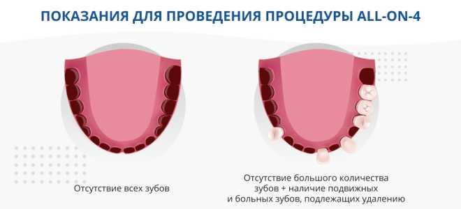 All-on-4-имплантация: протезирование зубов с немедленной нагрузкой