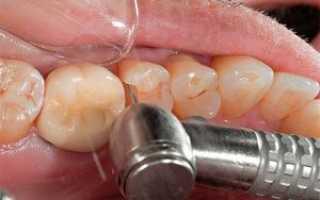 Зачем и как ставят пломбу на зуб: этапы, разновидности, больно ли это?