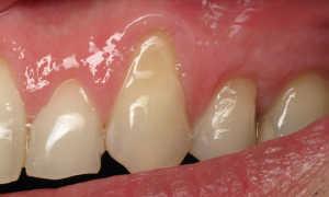 Рецессия десны (оголились шейки зубов и десна отошла от зуба): причины, что делать
