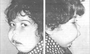 Остеосаркома (остеогенная саркома) челюсти: симптомы с фото, лечение, прогноз