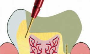 Пины (парапульпарные штифты) позволяют восстановить зуб без удаления нерва