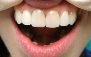 Зачем устанавливаются временные искусственные зубы (мосты и коронки)
