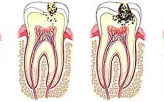 Аспирин (ацетилсалициловая кислота) от зубной боли: как принимать, отзывы