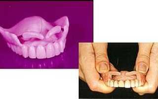 Пелоты ортопедические в стоматологии – это что, устройство, изготовление