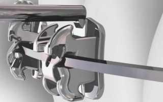 Самолигирующие безлигатурные брекеты металлические, керамические и сапфировые: особенности