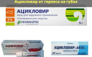 Ацикловир в ампулах, мазь и таблетки от герпеса на губах и во рту: как принимать, отзывы