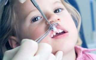 Детское протезирование молочных зубов, ортодонтия: виды зубных протезов для детей
