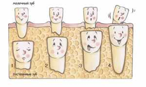 Что делать, если у ребенка растет зуб вторым рядом и почему коренные и молочные лезут вместе