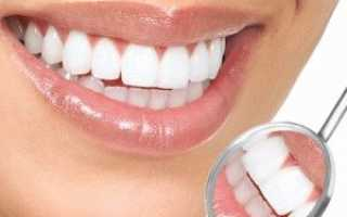 Кислородное отбеливание зубов: цена, виды, плюсы и минусы