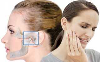 Артрит височно-нижнечелюстного сустава: причины, симптомы и лечение ВНЧС
