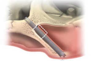 Zygoma: скуловые имплантаты в стоматологии – показания и противопоказания к установке