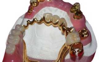 Кламмеры для зубных протезов: система Нея, Роуча, дентоальвеолярный и другие виды