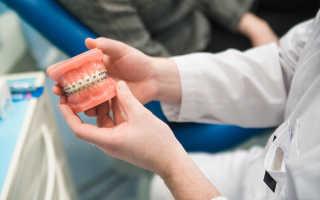 Ортодонтия в стоматологии: что это такое и методы лечения