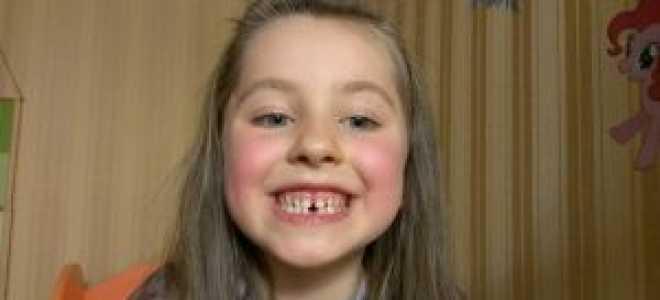 Что делать, если у ребенка выпал первый молочный зуб: народные поверья и приметы