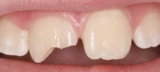 Травма зубов (ушиб, перелом, вывих): классификация, симптомы, диагностика, лечение
