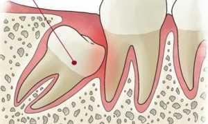 Что делать после удаления зуба мудрости: рекомендации, как снять боль, чем полоскать