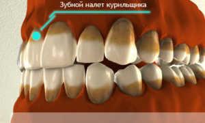 Как убрать налет курильщика: чем очистить зубы от никотина и табачных смол