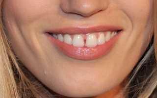 Щербинка между зубами: что означает, как называется, о чем говорит