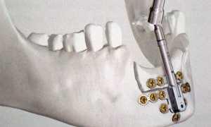 Что такое дистрактор, зачем и как его используют в стоматологии
