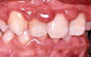 Гипертрофический гингивит: формы течения, причины, симптомы, лечение