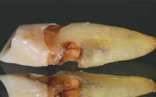 Причины, симптомы, диагностика и лечение кариеса корня
