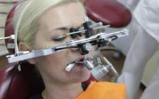 Аксиография (кондилография) в стоматологии: показания, суть метода, оборудование