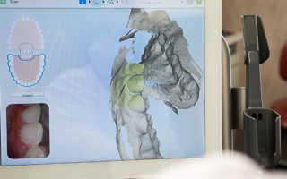3D-стоматология: индивидуальный подход к каждому зубу и высокое качество протеза