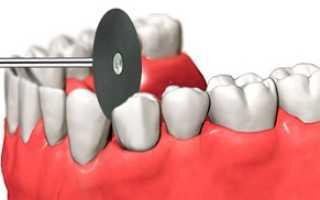 Зачем неообходима сепарация зубов, как она проводится и каковы последствия