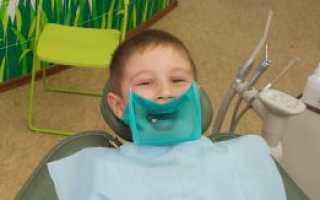 Коффердам (раббердам, оптидам) в стоматологии: цели и методы наложения