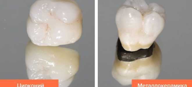 Циркониевая коронка (из диоксида циркония) для зубов: отзывы, установка, цена
