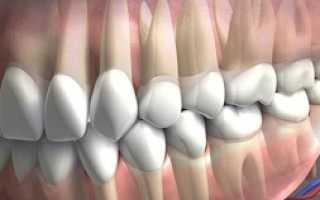 Что такое окклюзия в стоматологии: центральная, дистальная, мезиальная и другие виды