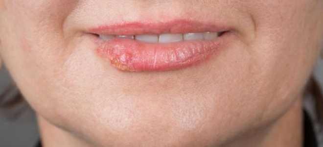 Прыщ на губе: приметы, почему появляются, лечение гнойников, угрей – как убрать быстро